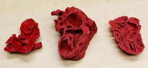 Pediatric innovation: How a 3D printer helped save life of toddler with congenital heart defects (VIDEO)