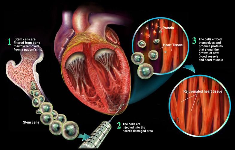 Two UMiami School Studies Show How Stem Cell Injections Improve Heart Structure