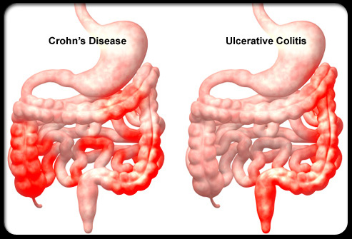 FOCUSING ON BACTERIA'S ROLE IN INFLAMMATORY BOWEL DISEASE