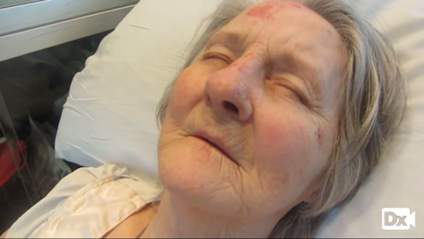 73-year-old with multiple injuries from fall (Need Diagnosis, Please….)