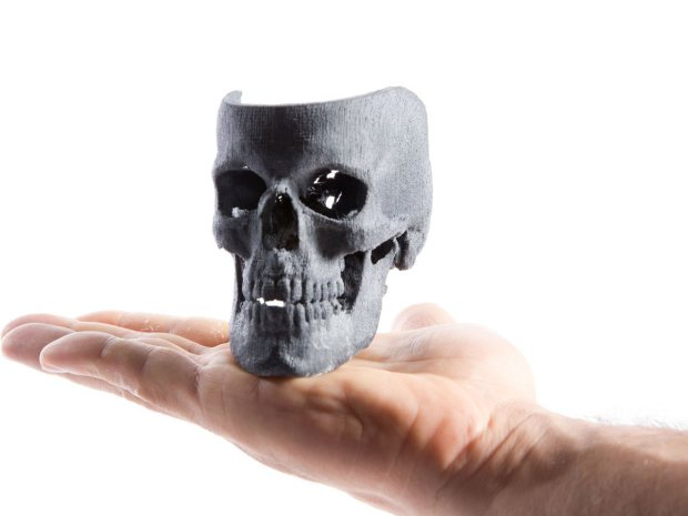 3D Print Your Medical Scan, using open-source software.